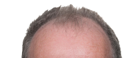 Beginnende Glatzenbildung, Geheimratsecken