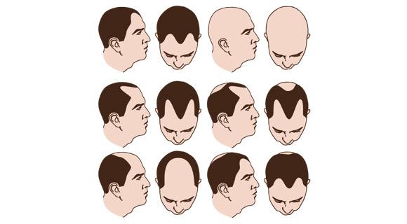 Verschiedene Arten von Haarausfall.